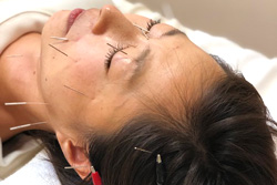 痛いけど効く!鍼と指圧でのピンポイントアプローチ! 顔だけでなく顎や首の関節も施術するから効果アップ! 小顔効果、むくみ解消、顔のバランスが整う、しわが薄くなる等。様々な悩みに対応していきます。 頭痛や眼精疲労にも効果があるので男性にもおススメです。
